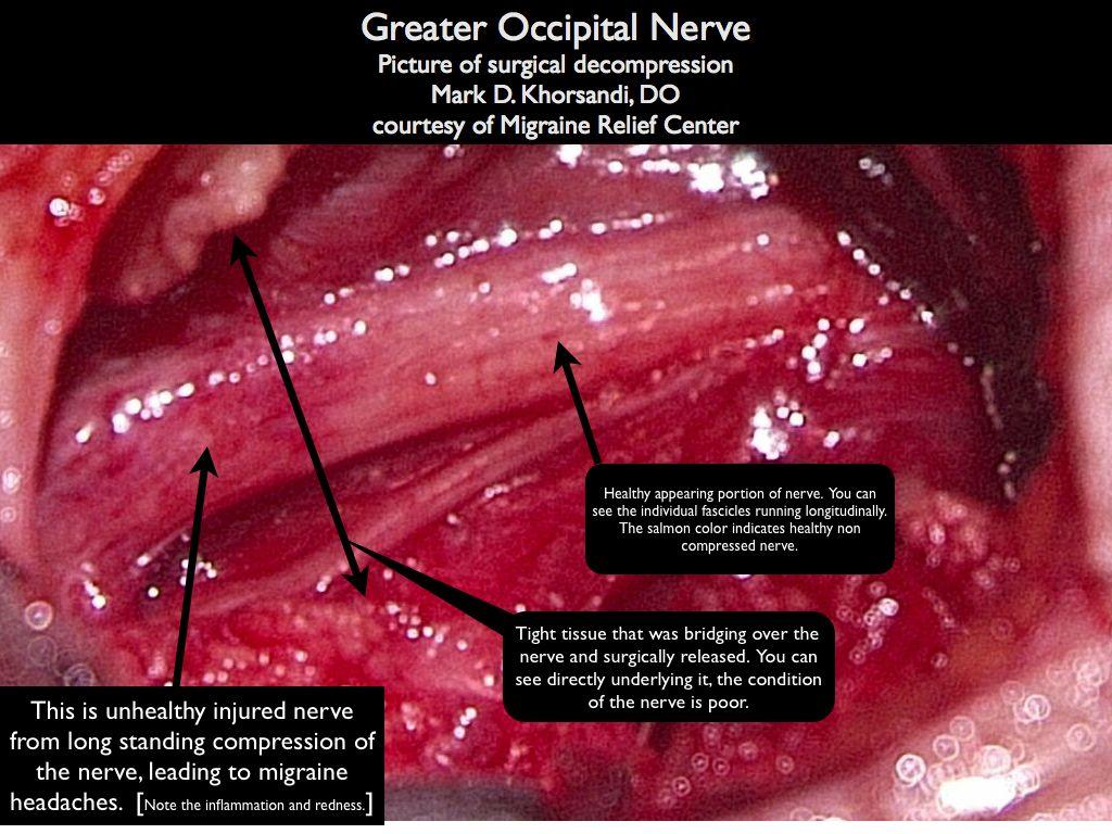 Greater_occipital_nerve.001