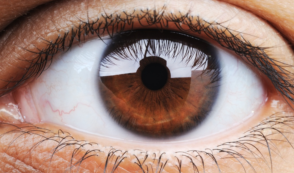 can migraines cause blurred vision