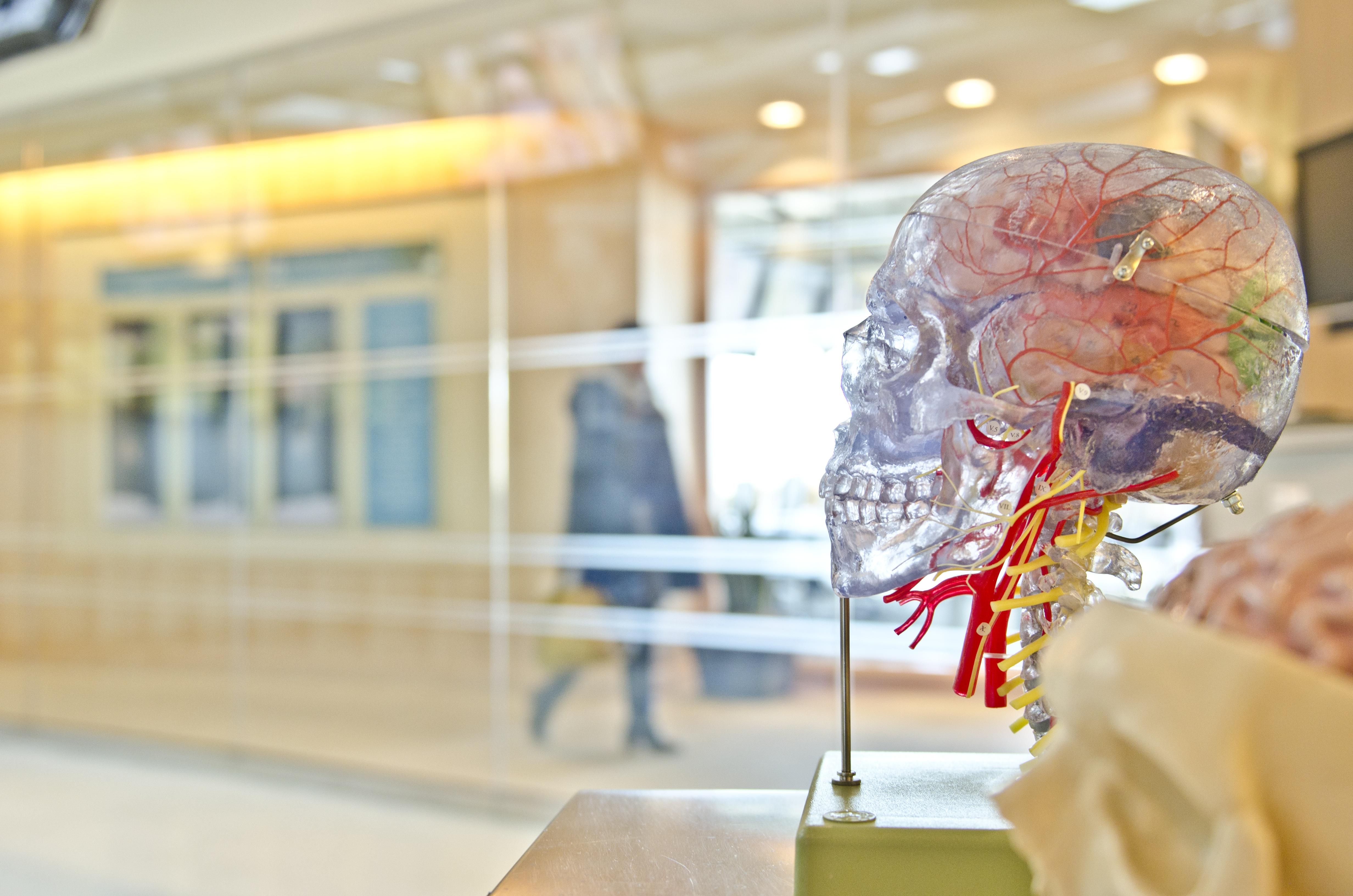 migraine and stroke.jpg